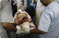 Последние данные о количестве жертв агрессии сионистов