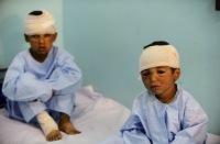 В результате авиадуара НАТО в Афганистане погибли 10 детей