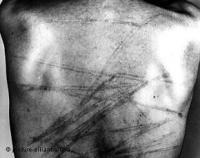 Пытки в киргизских следственных изоляторах - обычное явление