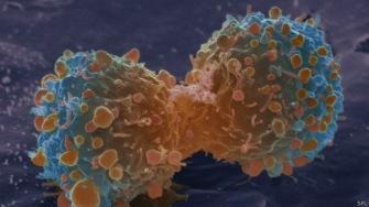 Большинство видов рака это воля Аллаха и ничего более