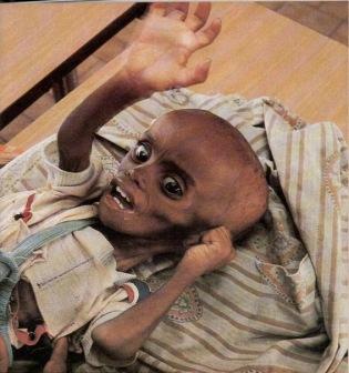 Дети в Сомали продолжают умирать