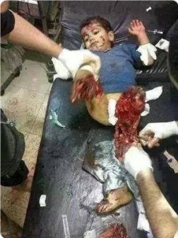 """Тысячи убитых детей... В 1940-х так проявился почерк фашизма. В наши дни подобную жестокость практикует сионистский """"Израиль"""""""