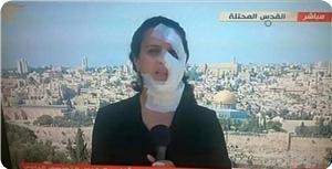 """""""Одно из проявлений """"израильского"""" зла – нападения на работников прессы..."""""""
